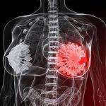 Мастопатия молочной железы необходим постоянный контроль над болезнью