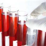 Как улучшить состав крови: 5 советов