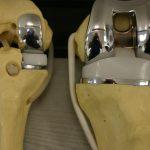 В каких случаях эндопротезирование суставов – единственный