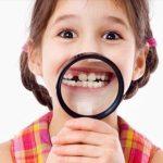 Почему важно лечить молочные зубы: советы стоматологов