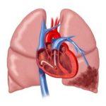 Мучительный кашель и резкая слабость