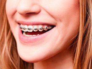 Кривизна зубов и неправильный прикус: исправлять или нет?