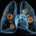 Вирусная пневмония и стратегия ее лечения