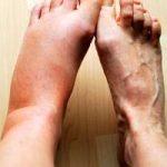 К здоровью – через завершение острого воспаления
