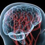 Нимотоп® в комплексном лечении хронических нарушений