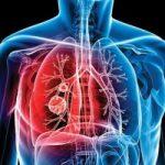 Утверждена новая государственная программа борьбы с туберкулезом