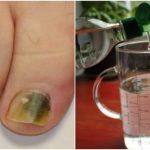 Грибок ногтей? Это средство на основе спирта и натуральных ингредиентов поможет вам!